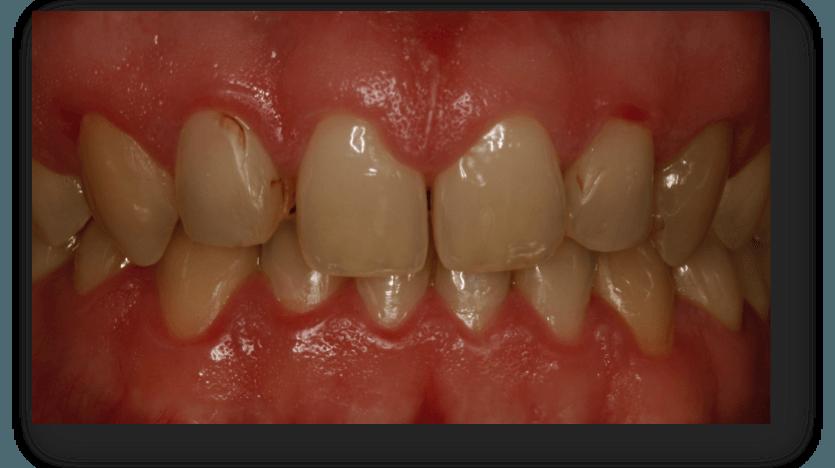 caso carillas dentales2