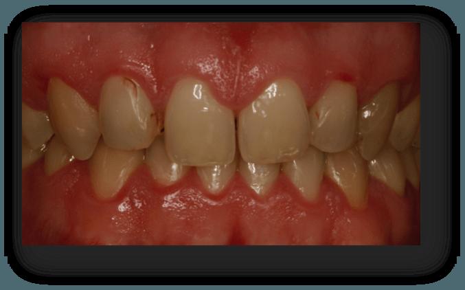 cambio de carillas dentales antes