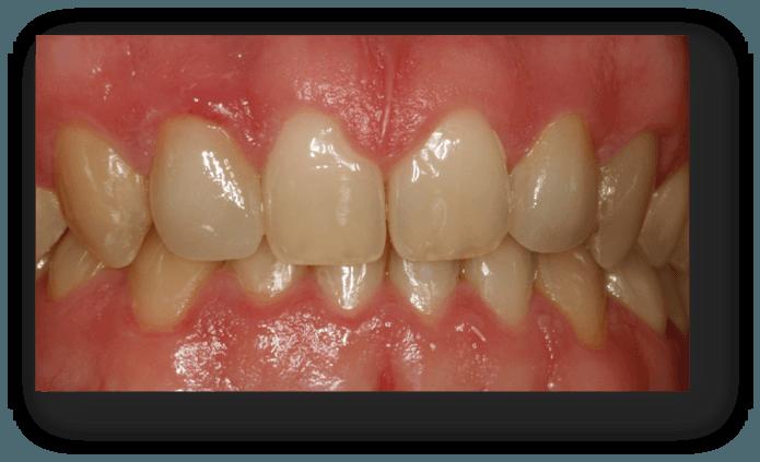 caso carillas dentales despues