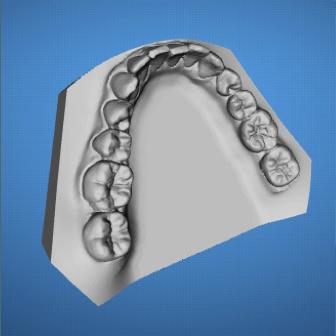 ortodoncia-ordenador-madrid