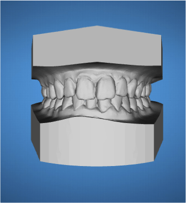ortodoncia-ordenador-madrid2