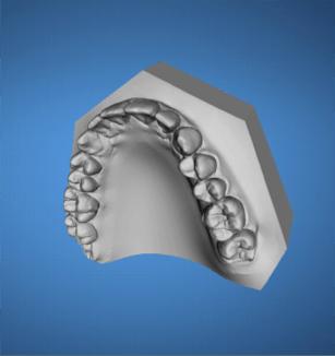 ortodoncia-ordenador-madrid3
