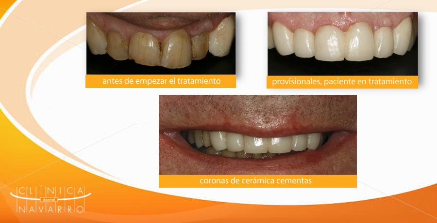 caso clinico de coronas de porcelana en madrid