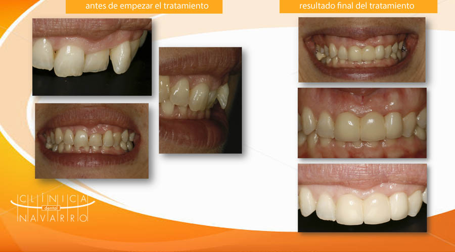 fractura vertical dental