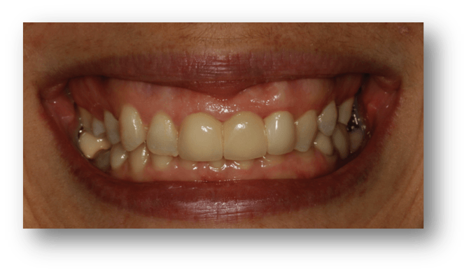 foto fractura vertical dental