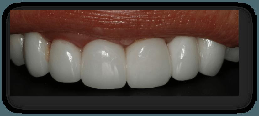 caso clinico implantes y coronas de disilicato de litio