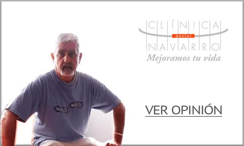 opinion implantes dentales madrid 1