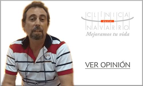 opinion implantes dentales madrid 3