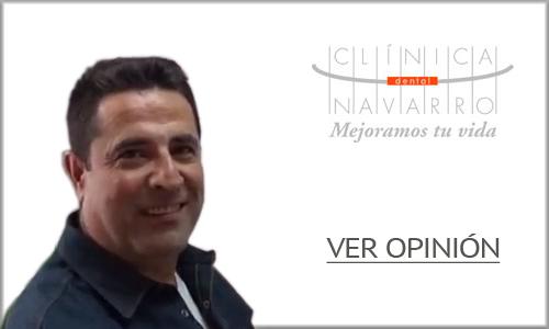 opinion implantes dentales madrid 4