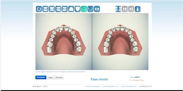 ortodoncia invisible alineadent en Madrid