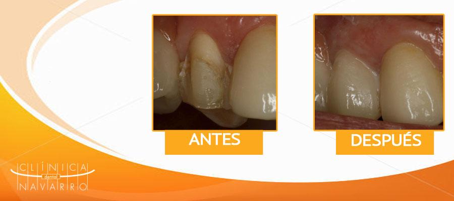 caso de carillas dentales en premolar