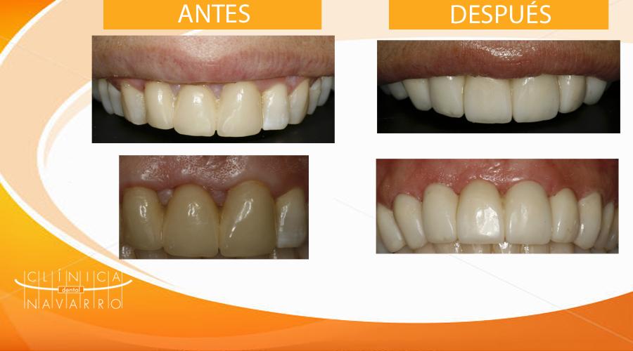 caso clínico sangrado de encías y estética dental