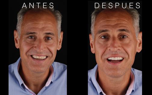 antes y después del DSD