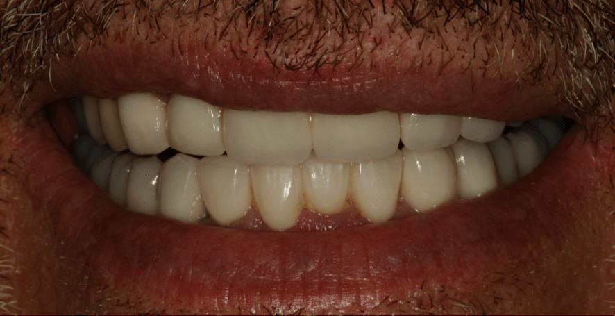 caso clinico rehabilitación dental con periodoncia e implantes dentales