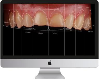 diseño de sonrisa visto en monitor de ordenador