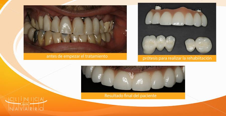 caso clínico sobre como rehabilitamos sobre implantes dentales