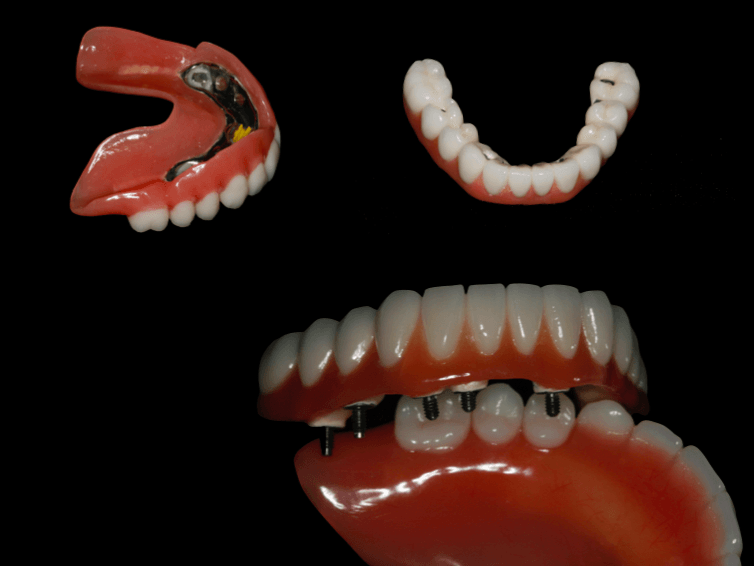 Protesis dentales maria carmen