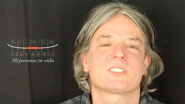 opinión y testimonio de Oscar sobre DSD en Clínica Dental Navarro Madrid