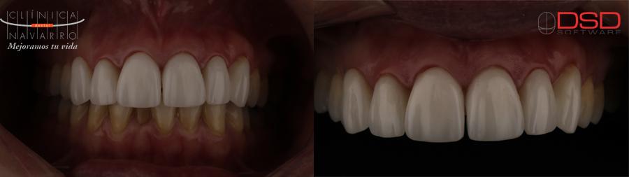 resultados DSD Patricia en Clínica Dental Navarro Madrid