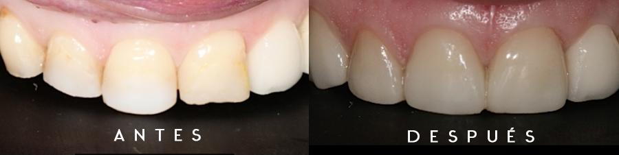Antes y después de caso clínico con carillas de disilicato de litio