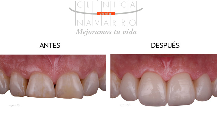 fotos del antes y el despues con carillas dentales