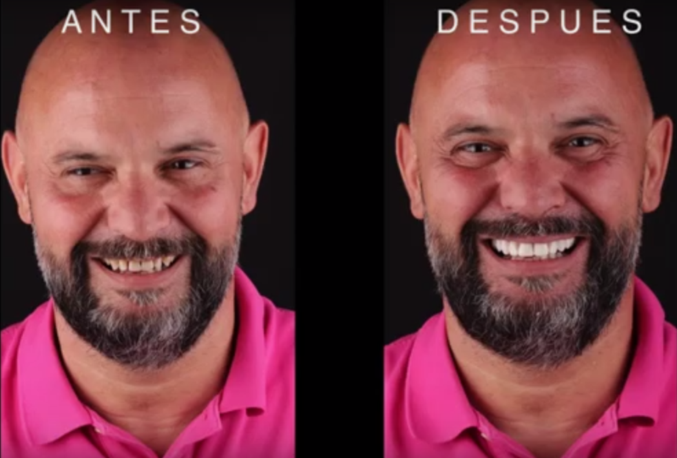 antes y después de DSD en caso clínico de Joserra en Dental Navarro Madrid