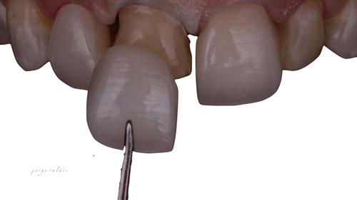 foto artistica carillas dentales 1
