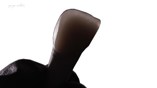 foto artística carillas dentales 2