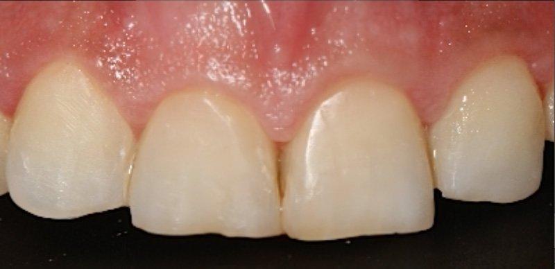 Solución a sensibilidad dental y caries con composite estético y estratificación