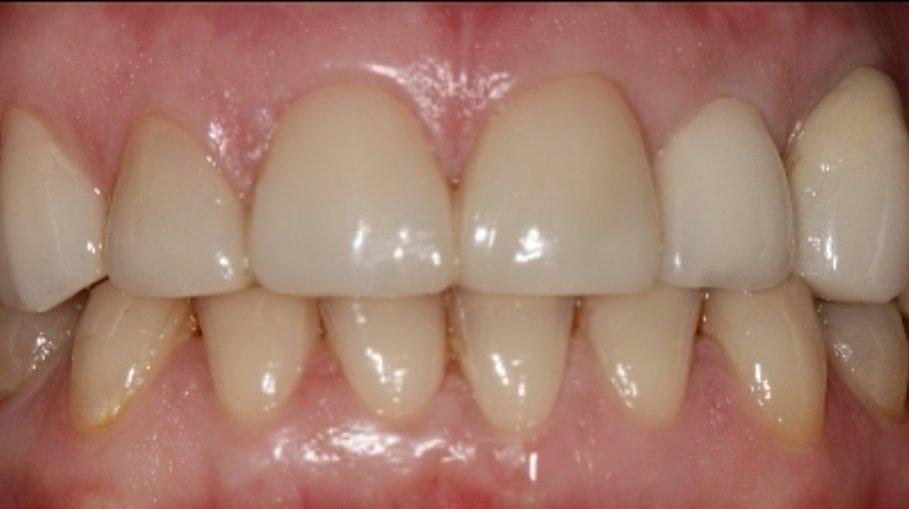 resultado tratamiento con carillas dentales de disilicato de litio