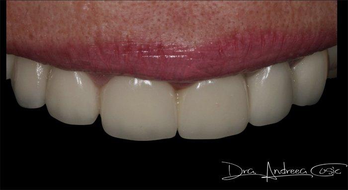 caso clínico alargamiento coronario clínica dental Navarro