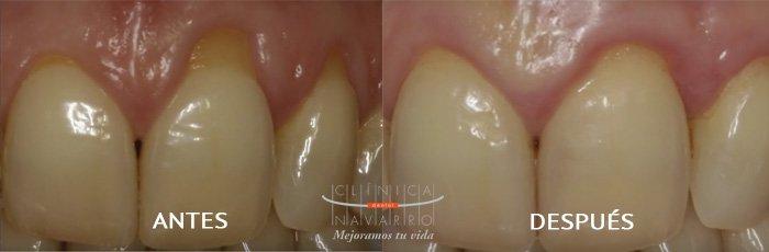 caso de cirugía mucogingival en clínica dental Navarro