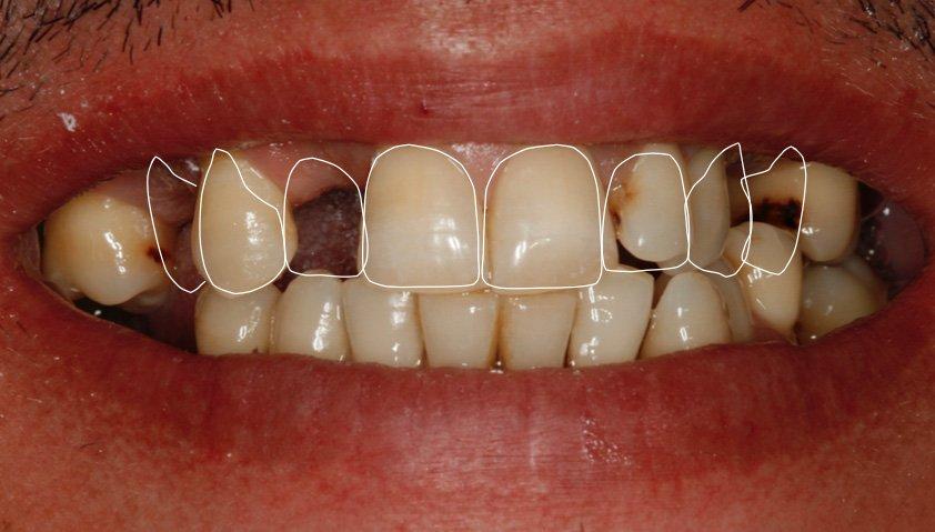 rehabilitación completa superior con coronas de metalo cerámica