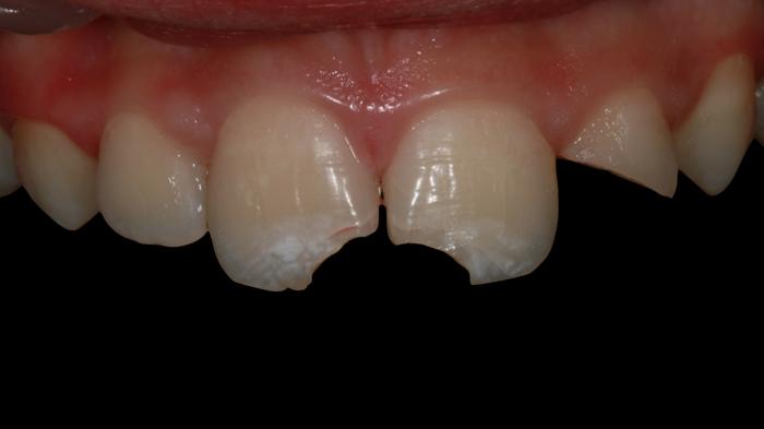 reconstruccion-fractura-dientes-rotos-antes2