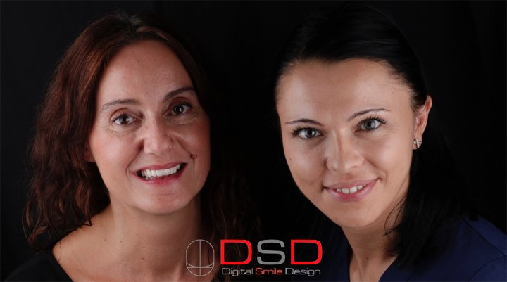 caso de diseño de sonrisa digital de Alicia en Clínica Dental Navarro Madrid