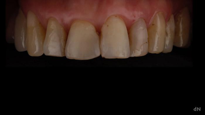 caso clinico dental obturaciones, filtradas y rotas