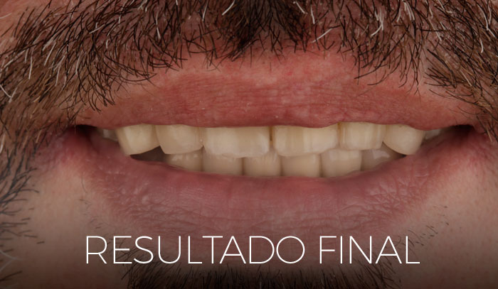 resultado final del caso clínico con implantes all on four