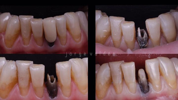 proceso de la rehabilitación de corona en diente endodonciado