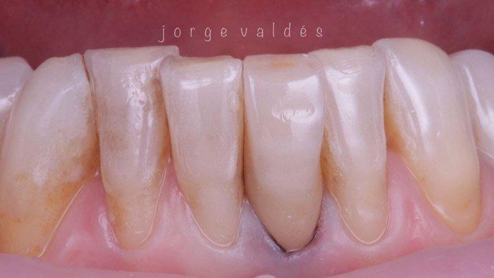 rehabilitación estética de corona en diente endodonciado