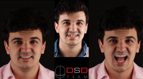 fotos caso clinico Ignacio con DSD en Clínica Dental Navarro