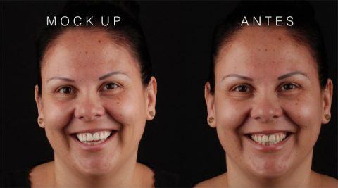 perfeccionando estética dental con DSD