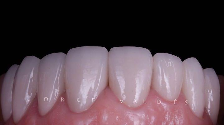 resultado final después de carillas dentales