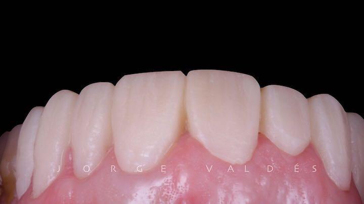 prueba en boca del caso clinico de carillas dentales