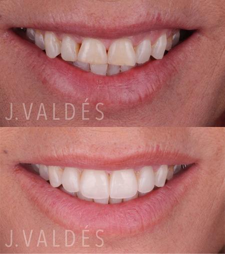 ejemplos de carillas dentales en Madrid