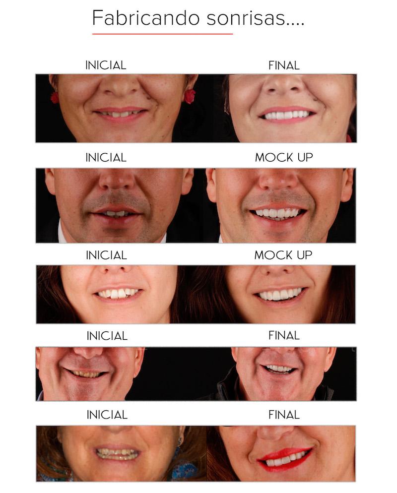 ejemplos de estética dental en Granada