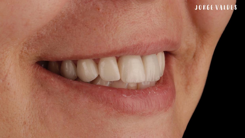sonrisa de Silvia después de DSD