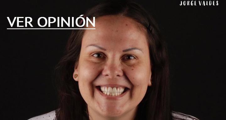 opinión de Silvia sobre implantes dentales