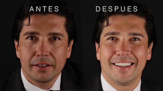 antes y después diseño de sonrisa en Madrid