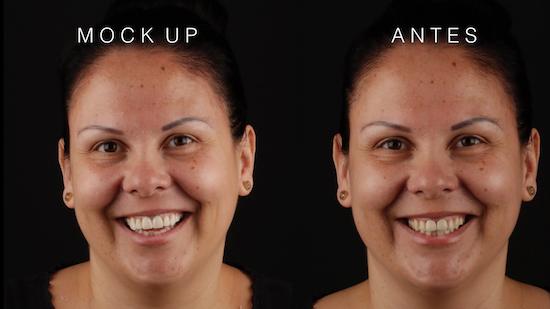 Fotos de antes y después de tratamiento de Diseño de Sonrisa