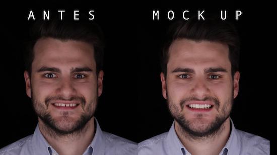 Caso práctico de uso de Diseño de Sonrisa con fotos de antes y después del paciente